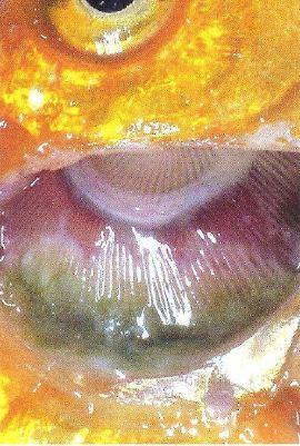 Comme découvrir les parasites chez le nourrisson